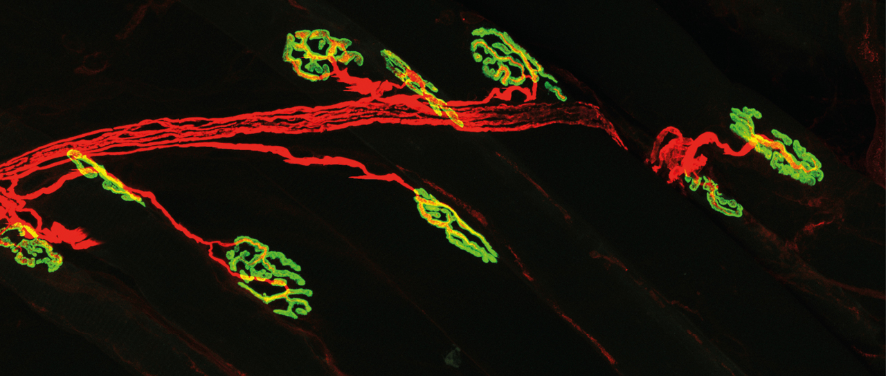 The neuromuscular junction (NMJ): innervation of the acetycholine receptors (green) on the muscle fiber by the motor neuron (red). (Image: University of Basel, Biozentrum)
