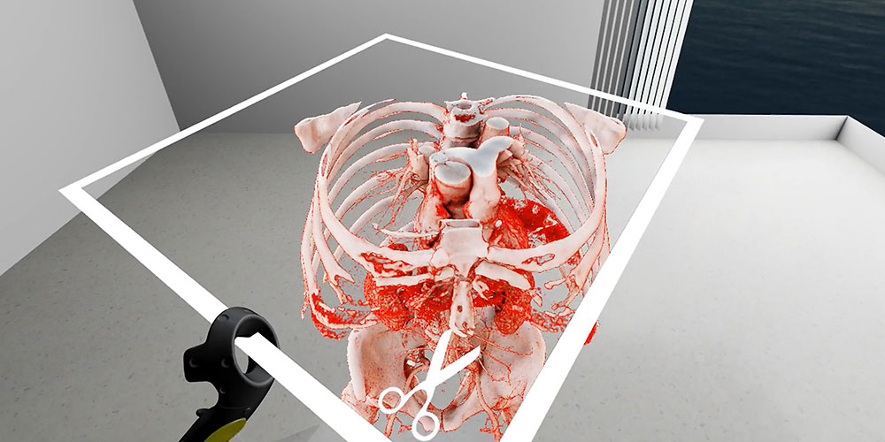 With SpectoVive, doctors can interact in a three-dimensional space with a part of the body that requires surgery. (Screenshot: University of Basel)