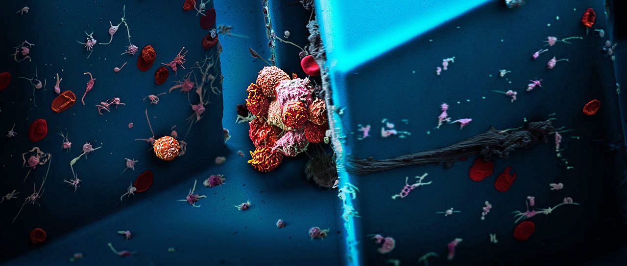 Clusters of circulating tumor cells, isolated from the blood of a patient with breast cancer, examined under a scanning electron microscope.(Image: Martin Oeggerli/Micronaut, supported by Nicola Aceto & Ali Fatih Sarioglu)