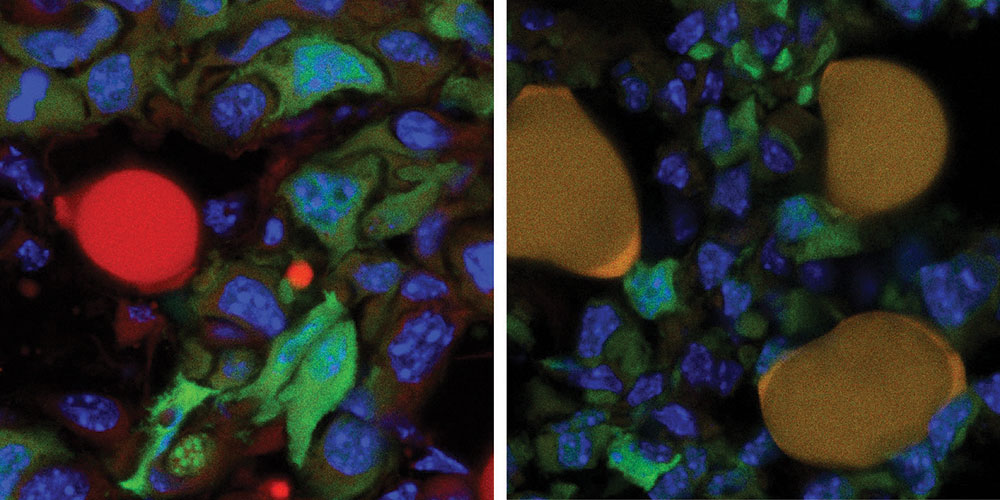 Conversion of breast cancer cells into fat cells impedes the formation of metastases