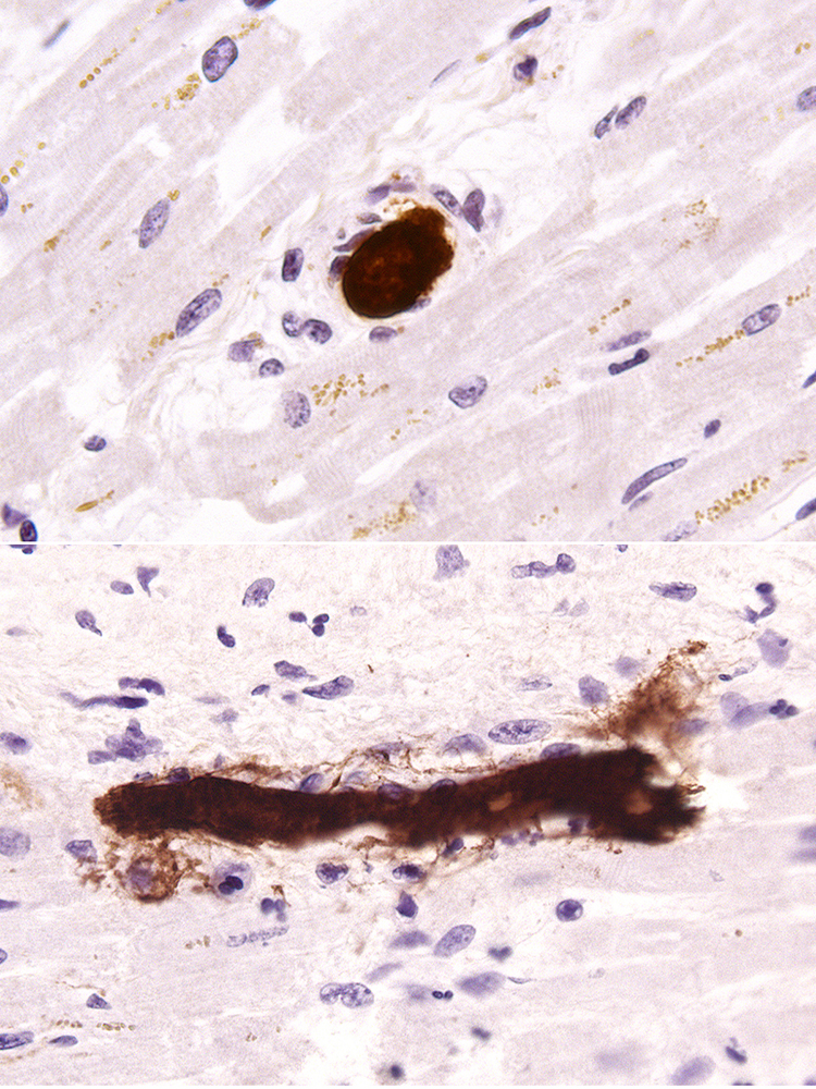 histological tissue staining of microthrombosis