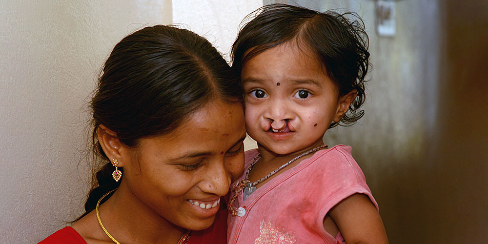 Cleft lip and palate: simpler treatment thanks to artificial intelligence