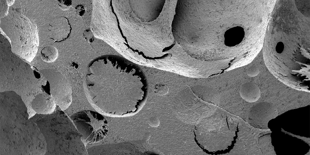 Scanning electron microscopy images confirm the deposition of an extracellular matrix which embeds cells, presumably of both stromal and blood origins. (Image: University of Basel)