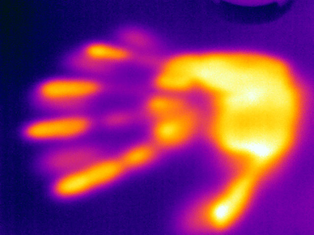 Living organisms radiate heat: image of a human hand taken with a thermal imaging camera. (Image: University of Basel, Department of Biomedical Engineering)