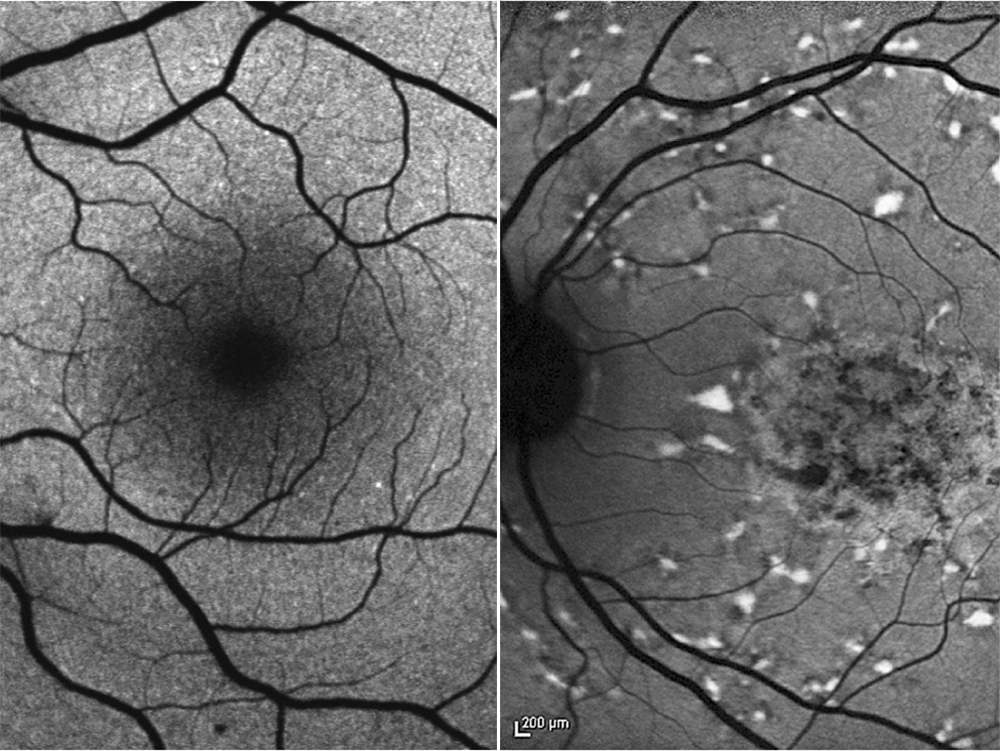 Accumulation of toxic substances: the retina of a a healthy specimen (left) and patient with Stargardt disease (right). (Image: IOB)