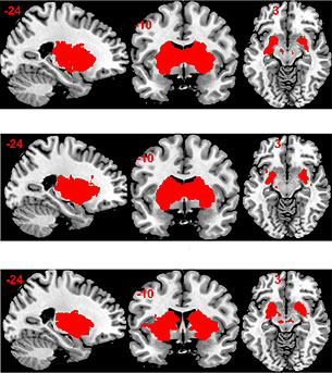 The MRI image clearly shows how the brain's reward, or limbic, system behaves differently when administered a placebo (top) or one of two types of sugar, glucose (center) and fructose (bottom). (Image: University of Basel, Department of Biomedicine)