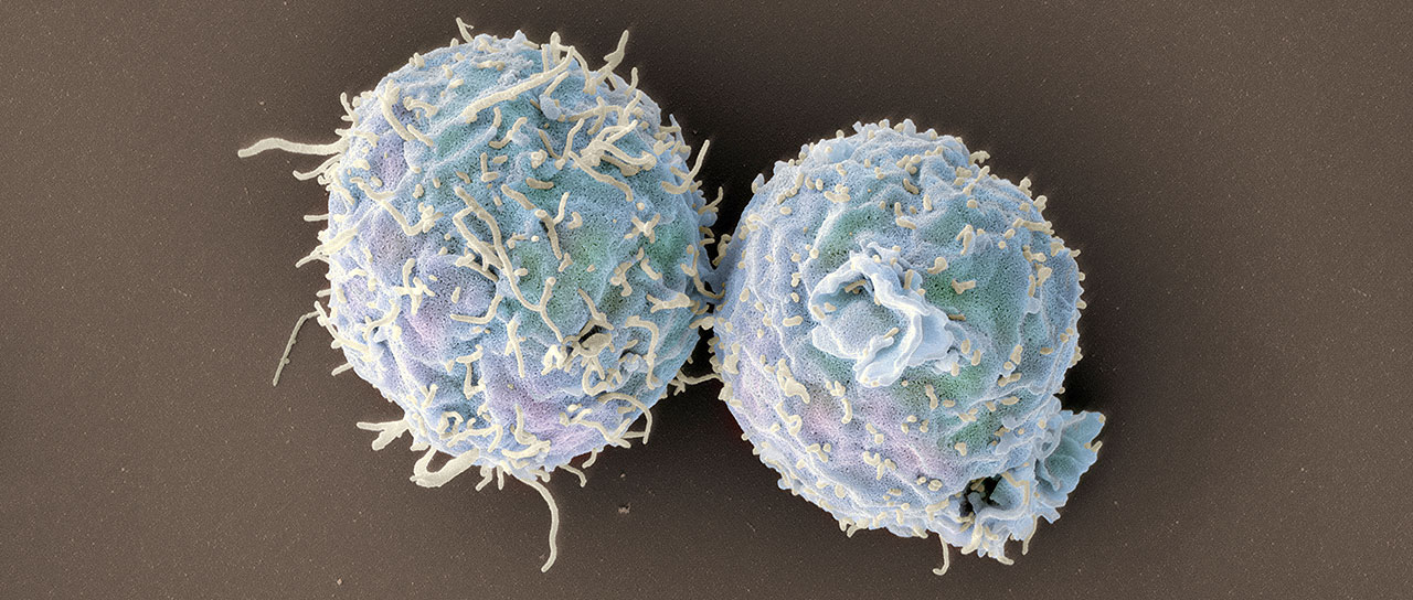 Scanning electron microscopy image of engineered T cells lacking coronin 1. (Image: Swiss Nanoscience Institute/University of Basel, Biozentrum)