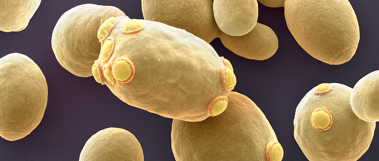 Baker's yeast Saccharomyces cerevisiae. (Image: University of Basel/SNI/Nano Imaging Lab)