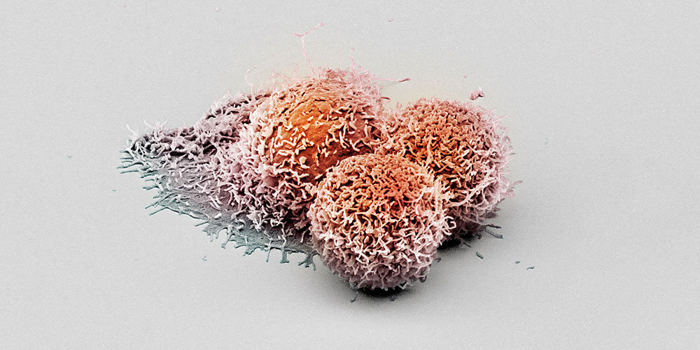 Scanning electron microscopy image of cancer cells. (Image: University of Basel, Biozentrum/Swiss Nanoscience Institute)